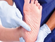 Diabetes Foot Deformaties