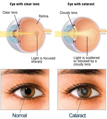 Cataract Stages