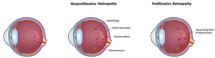 Stages of Retinopathy